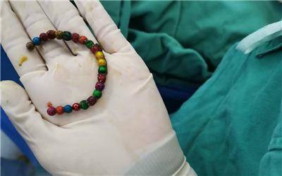 三岁小孩误食22颗磁力珠 腹痛三天造成8处肠穿孔